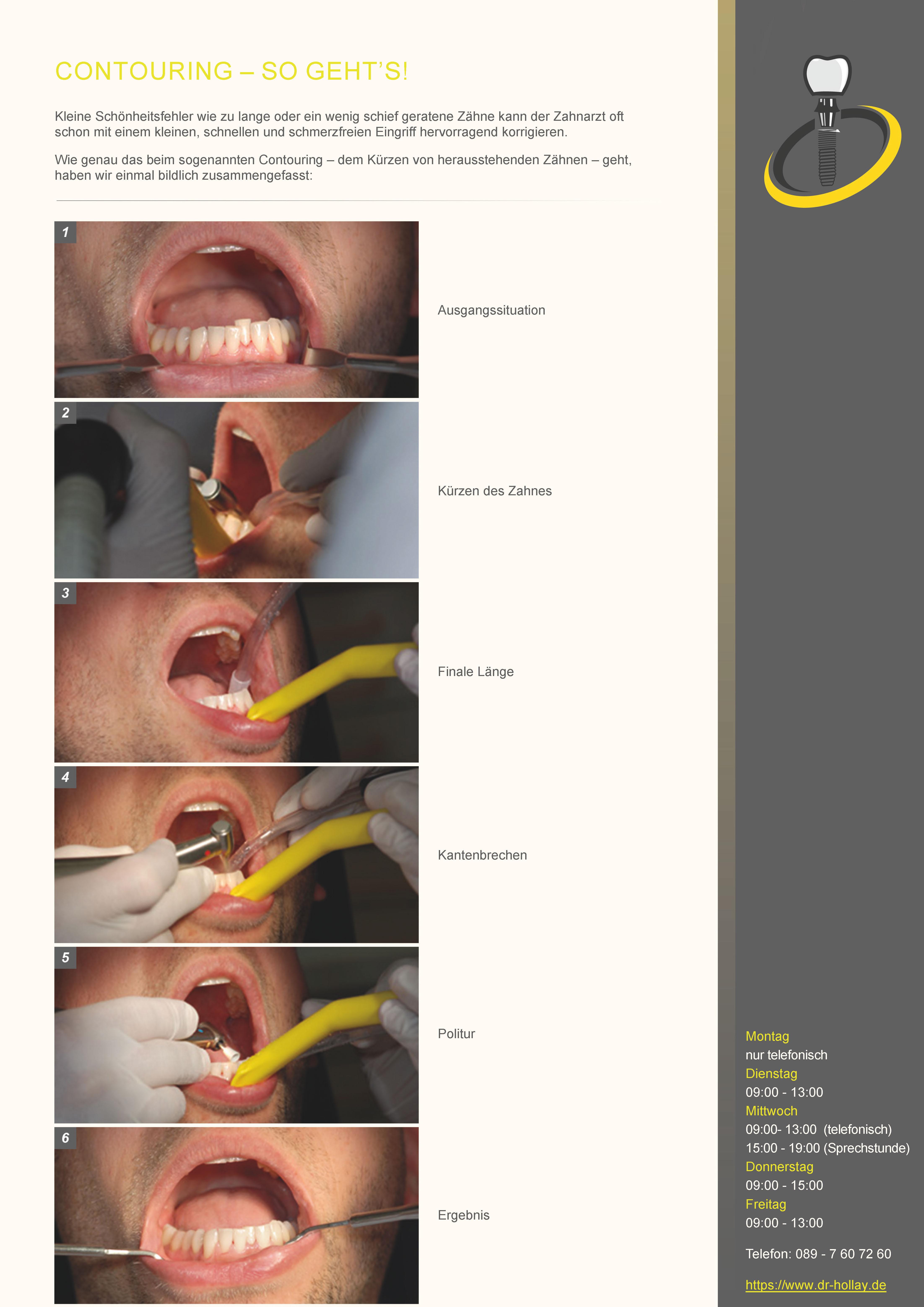 Contouring beim Zahnarzt