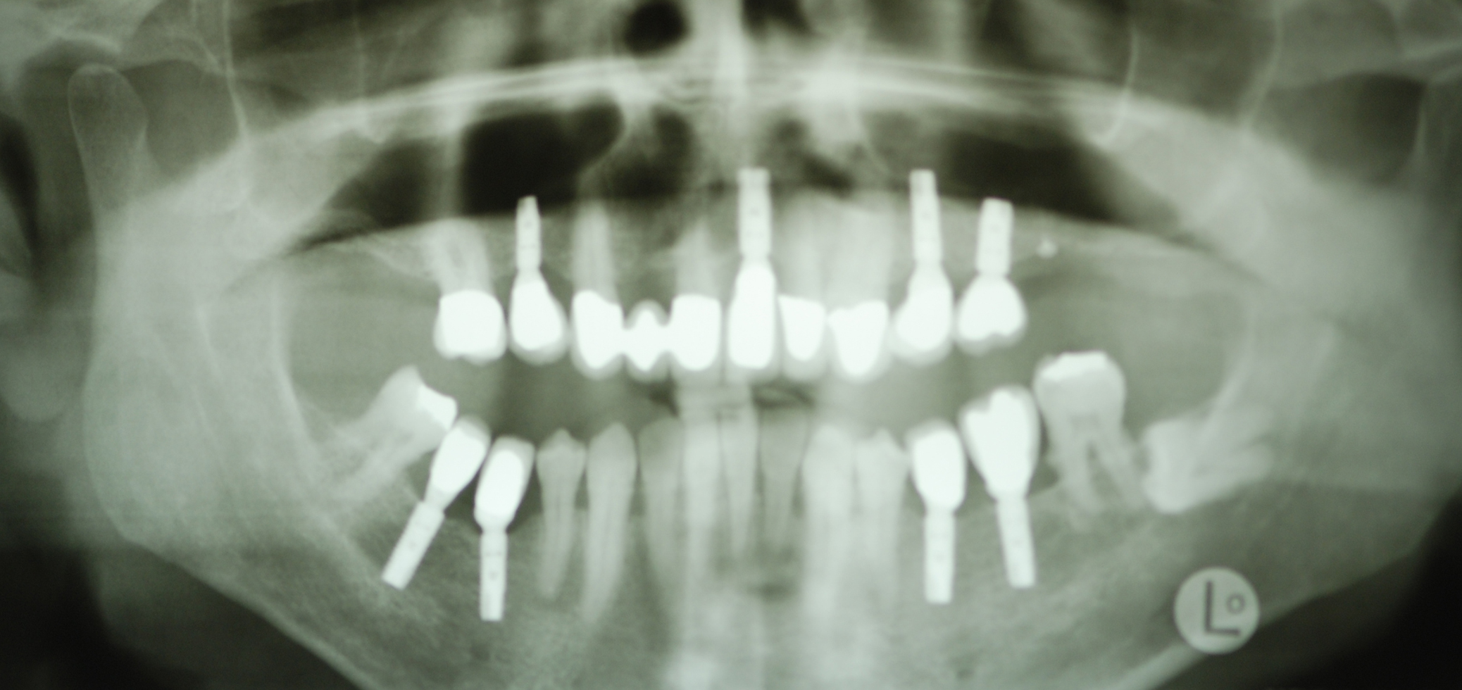 Hightech-Implantate: Direkt nach dem Setzen der Implantate Hightech-Implantate: Ansicht mit Zahnersatz nach 3 1/2 Jahren