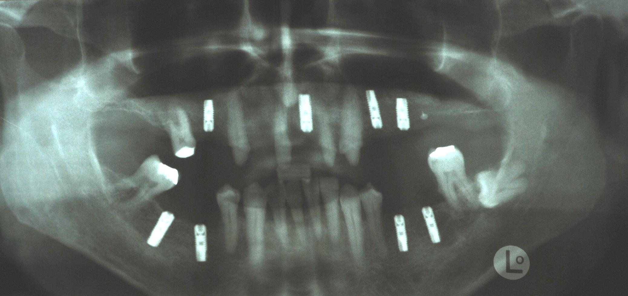 Hightech-Implantate: Direkt nach dem Setzen der Implantate