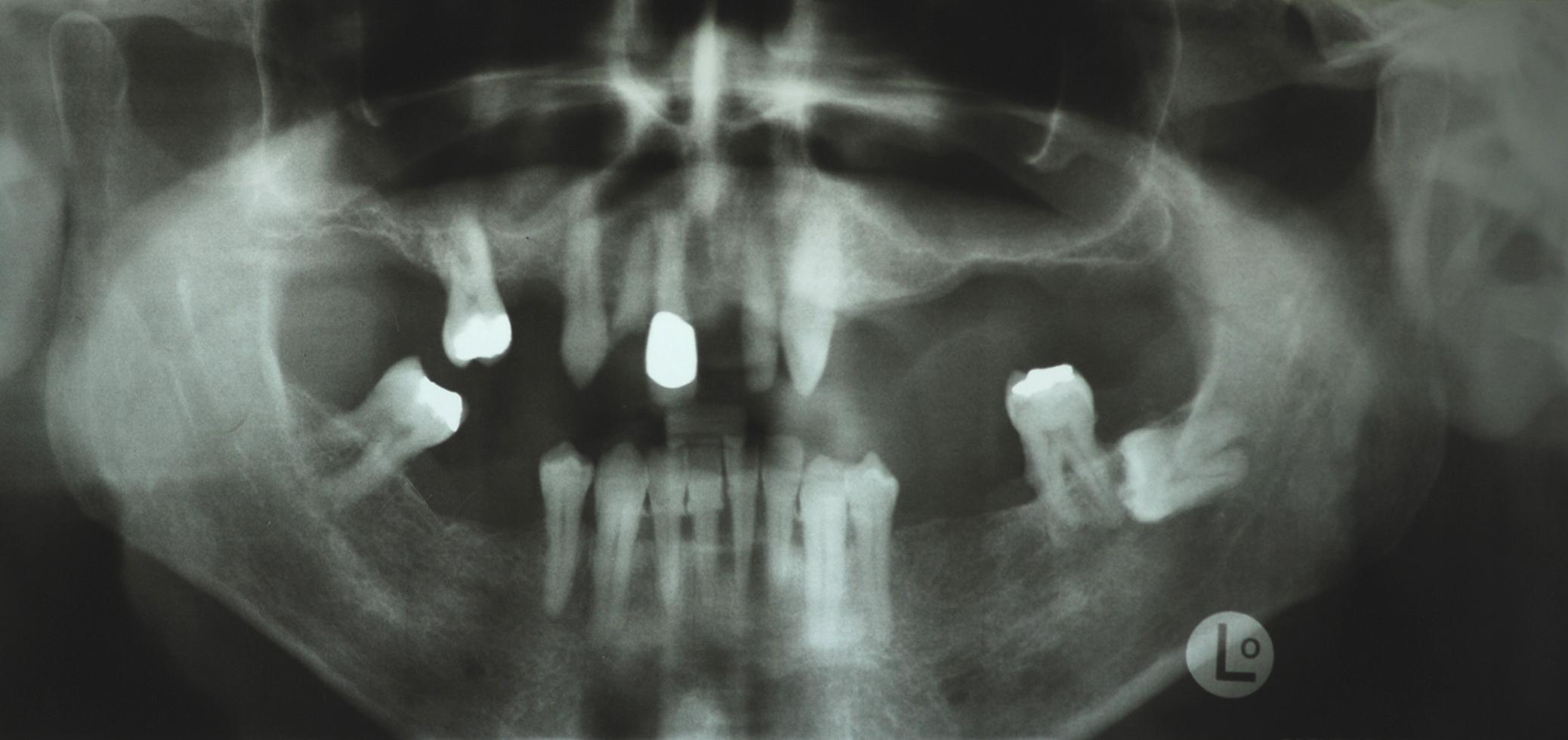 Hightech-Implantate: Zustand vor der Behandlung